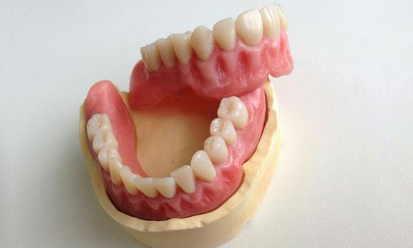 Как сделать съемные зубы 47